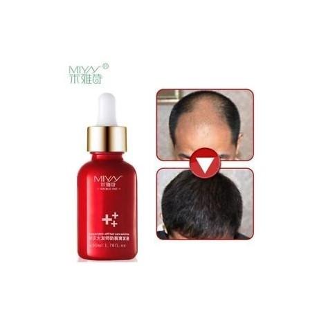 30ml Alopecia kezelés haj növekedése Gyors felújítás Pilatory Hajhullás elleni